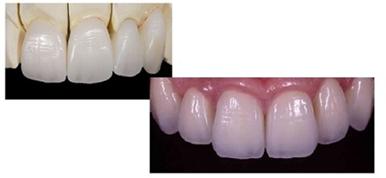 自然な色形のセラミック歯