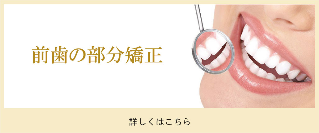 前歯の部分歯列矯正