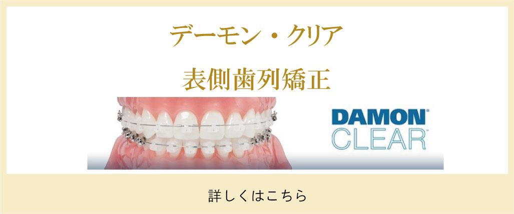 デーモン・クリア表側歯列矯正