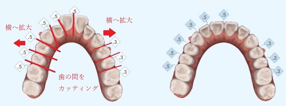 八重歯の歯並びシミュレーション