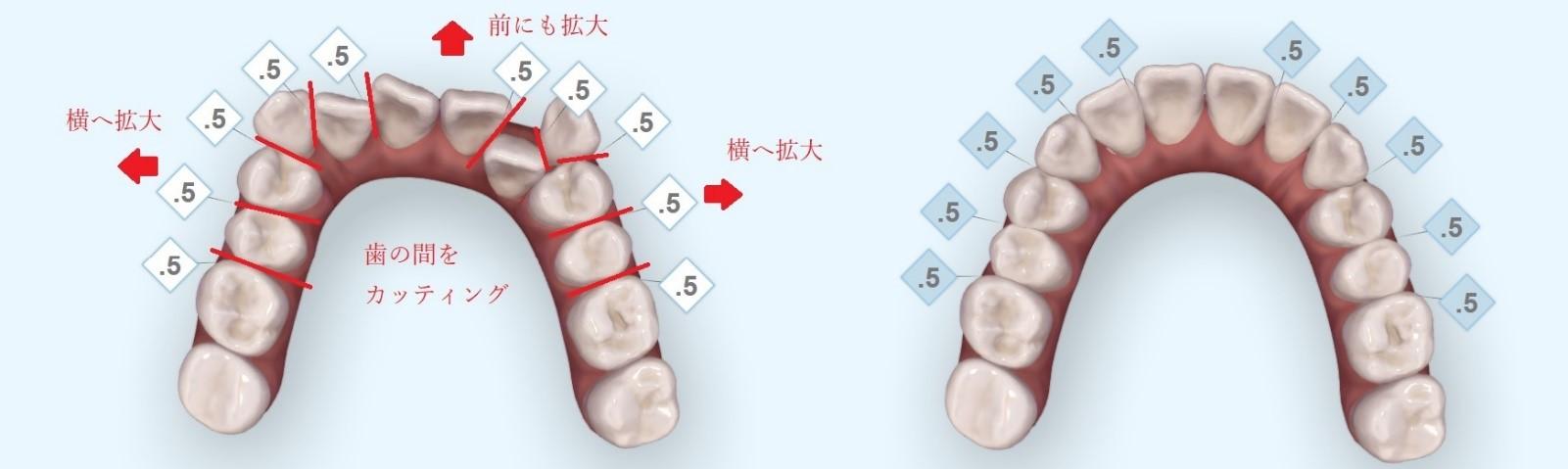 出っ歯の歯並びシミュレーション