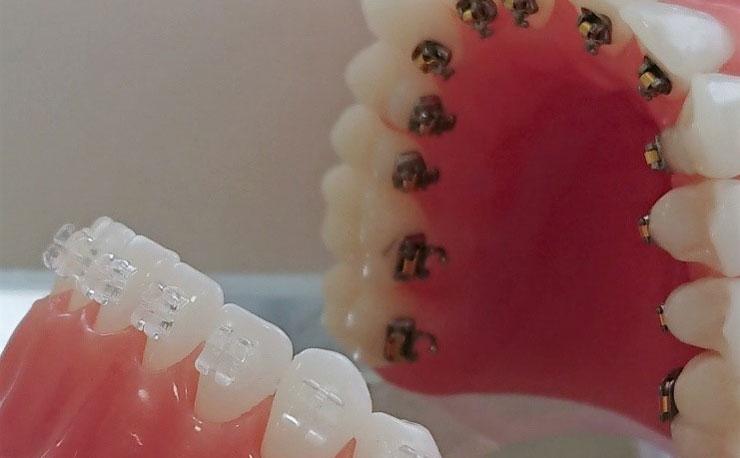 裏側歯列矯正イメージ