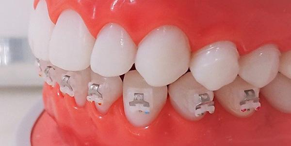歯の動きを邪魔しない