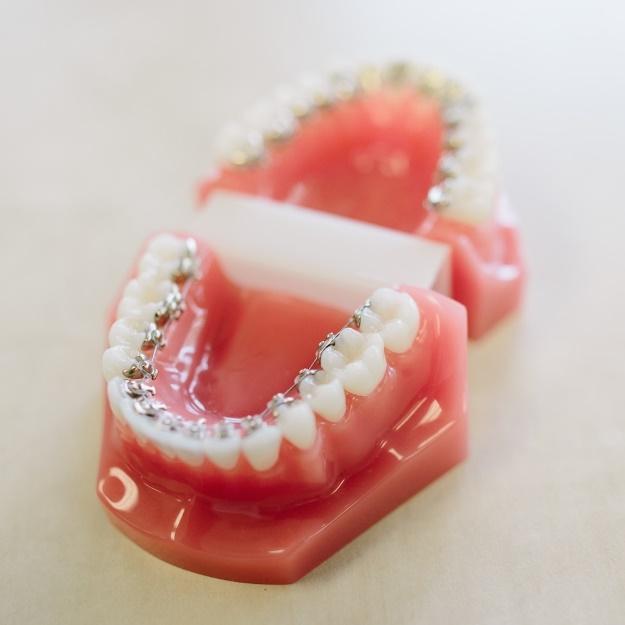 見えない矯正歯科治療イメージ