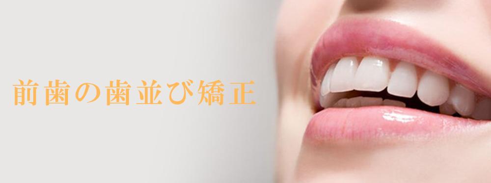 前歯の歯並び矯正