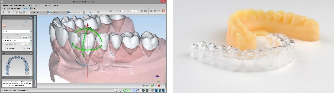 3Dデジタルマウスピースイメージ