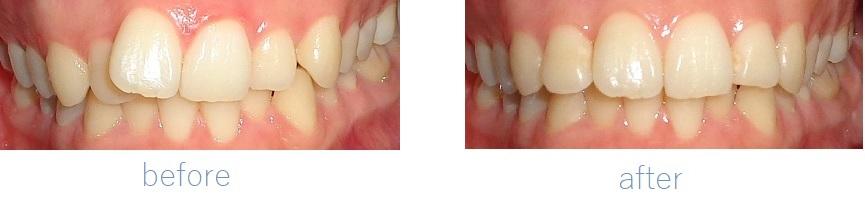 当院の部分歯列矯正治療ビフォーアフター