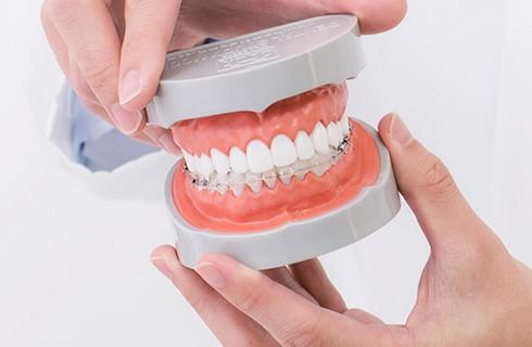 ハーフリンガル部分歯列矯正イメージ