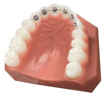 裏側からの部分歯列矯正イメージ