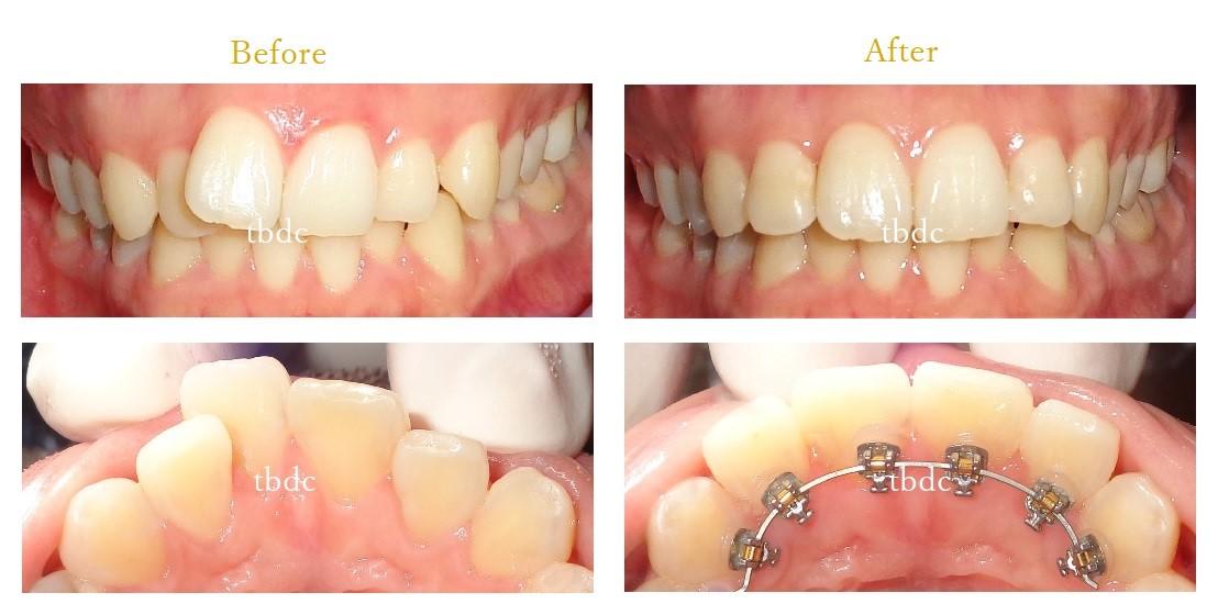 前歯のみの部分矯正ビフォーアフター