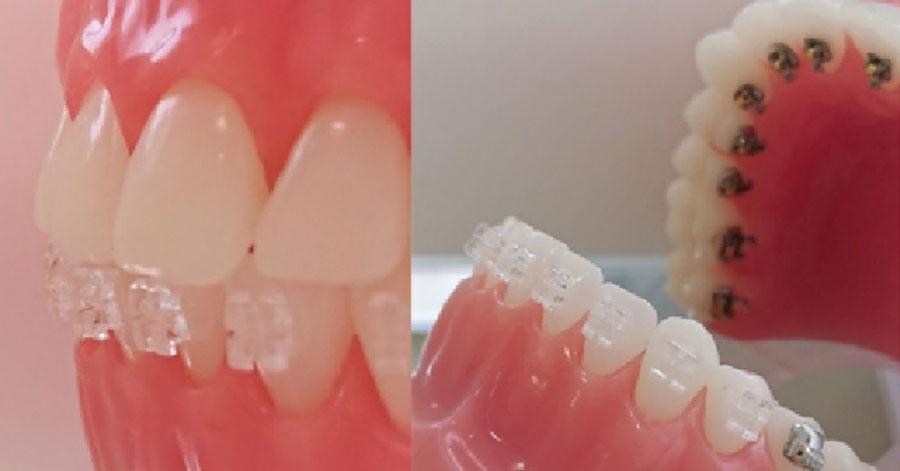 ハーフリンガル歯列矯正イメージ