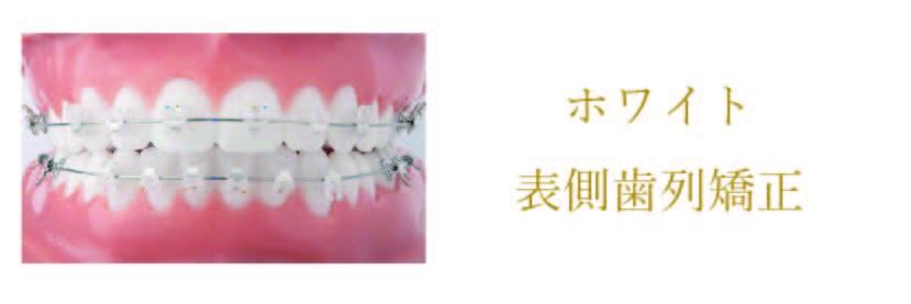 ホワイト表面歯列矯正 詳しくはこちら