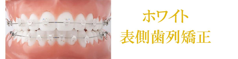 ホワイト表面歯列矯正