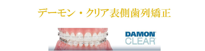 デーモン・クリア表面歯列矯正