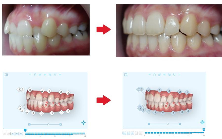 3Dデジタル歯科側面