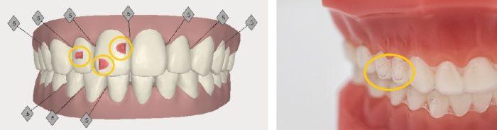 上下左右にも歯は動かせます