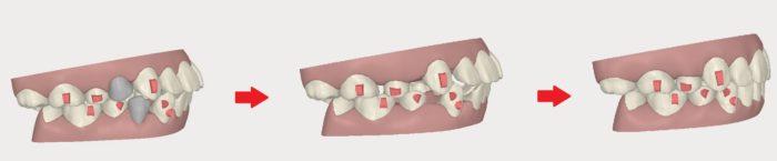抜歯修正も可能