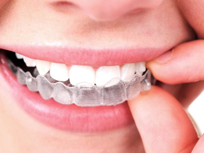 取外しOK!虫歯や歯周病になりにくい