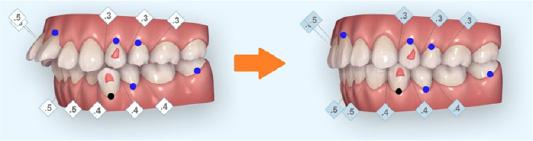 デジタルで矯正後の歯並びをシミュレーション